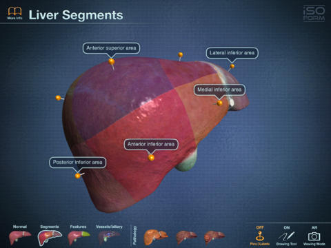 AR Liver Viewer-3