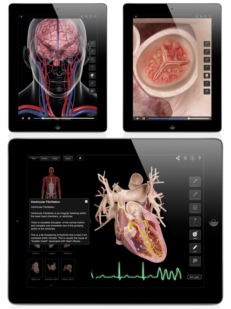Heart Pro III-3