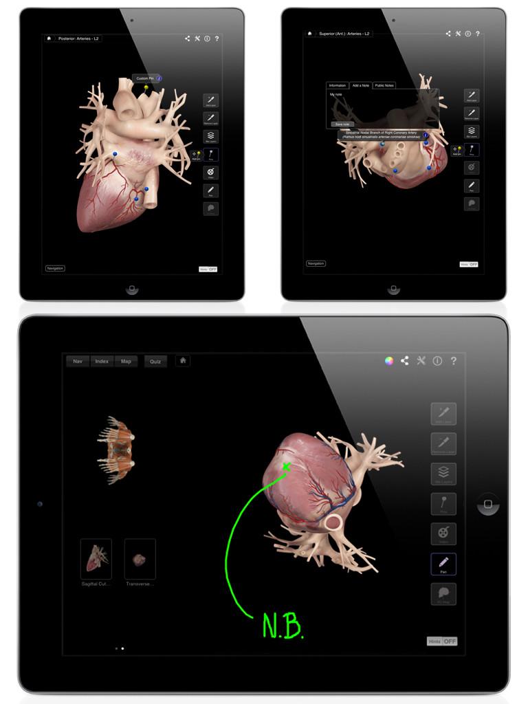 Heart Pro III-4