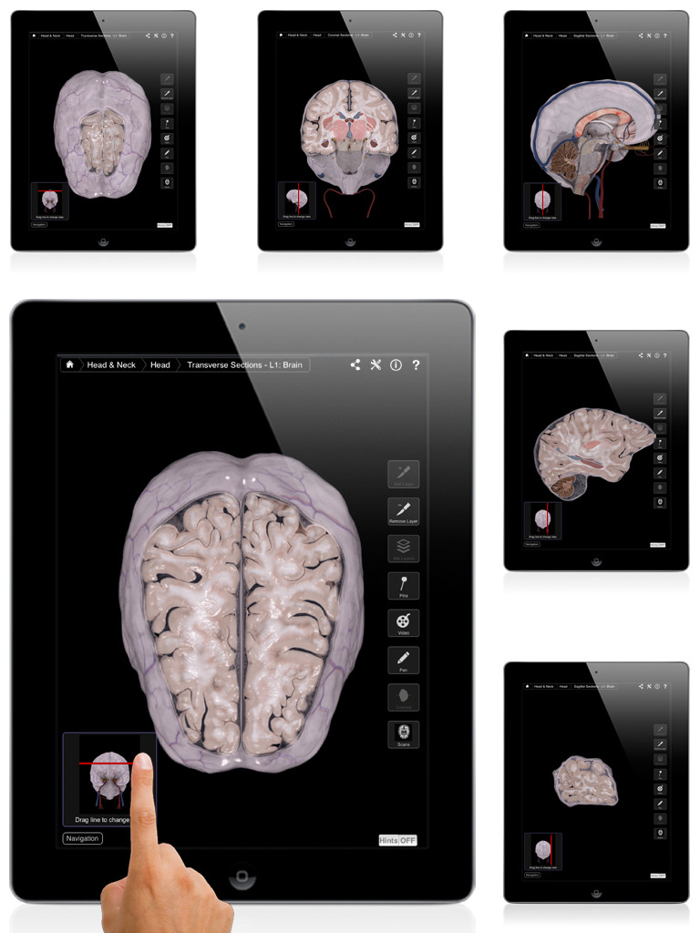 Brain and Nervous System Pro III-2