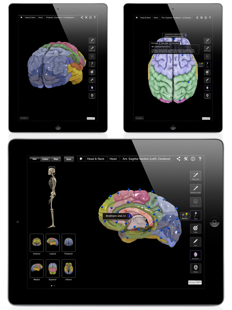 Brain and Nervous System Pro III