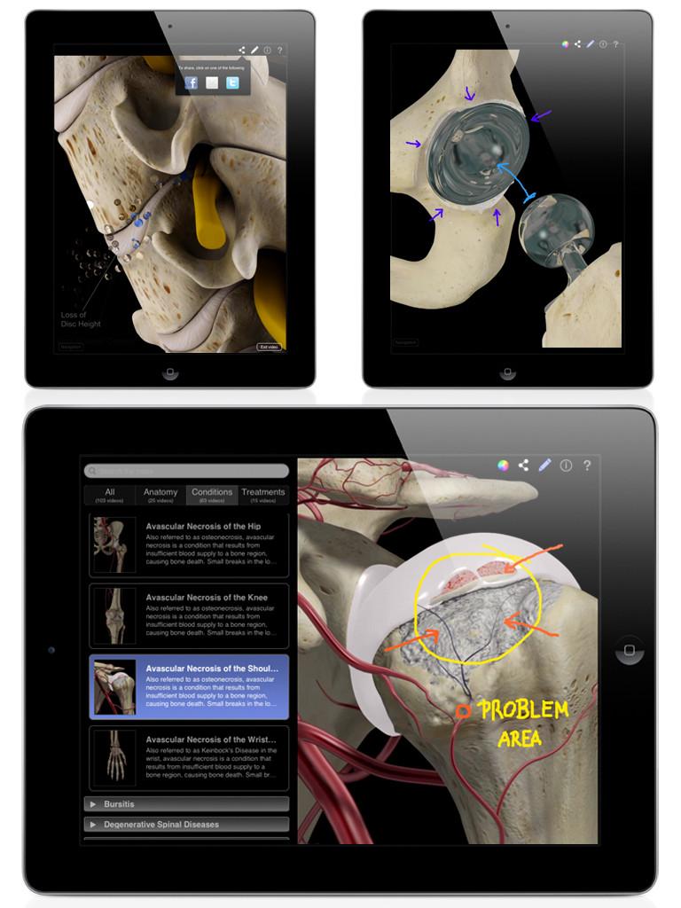 Orthopedic Patient Education-4